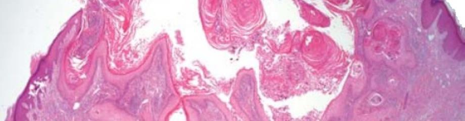 dermatopathonline   A web by Dr. Fernández Flores